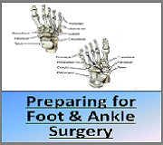 Preparing for Foot and Ankle Surgery