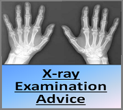 X-ray Examination Advice