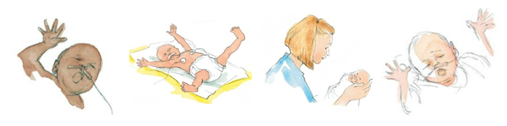 Premature Baby Signs of Stress and Comfort   NHS GGC